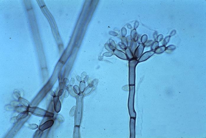 microscopisch