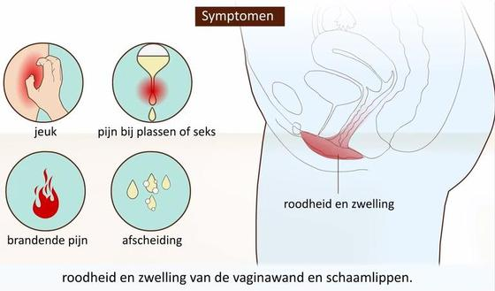 symtomen